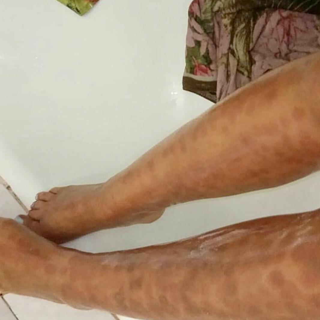 Салон красоты на Каховке, сожгли ноги, александритовый лазер эпиляция